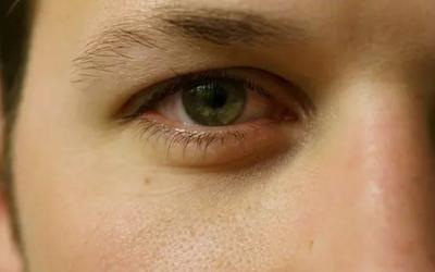 黑眼圈眼袋怎么去除