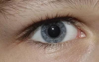 老花眼的治疗方法