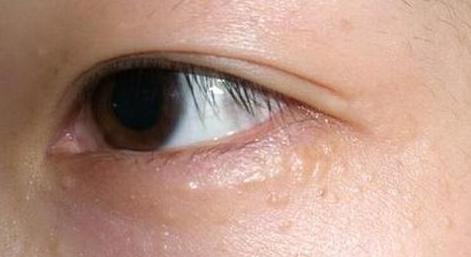 眼角长脂肪粒怎么办