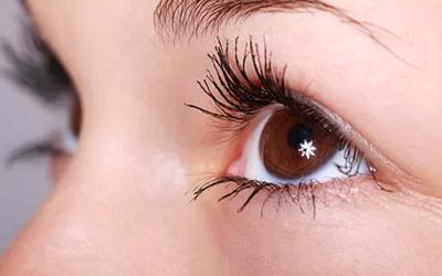 黑眼圈眼袋形成原因