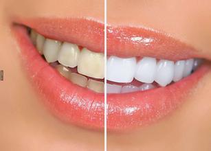 美白牙齿最有效的方法
