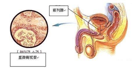 细菌性前列腺炎怎么样治疗?