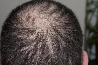 男人脱发的原因有哪些