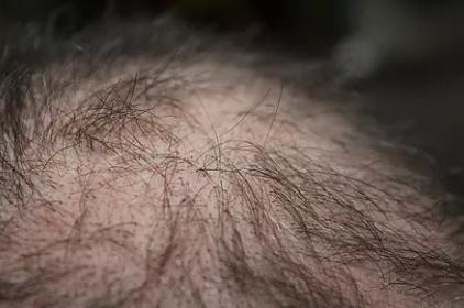 男性局部脱发是什么原因