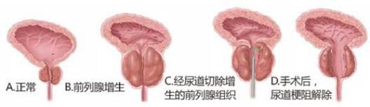 男人前列腺增生表现及治疗