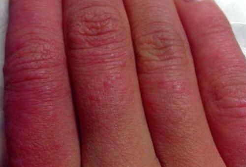 如何预防冻疮 多用冷水洗脸