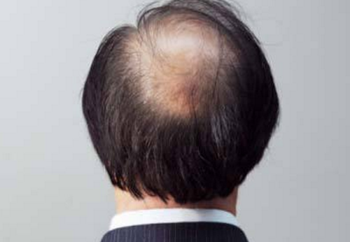 脱发严重怎么办 多吃富含铁的食物