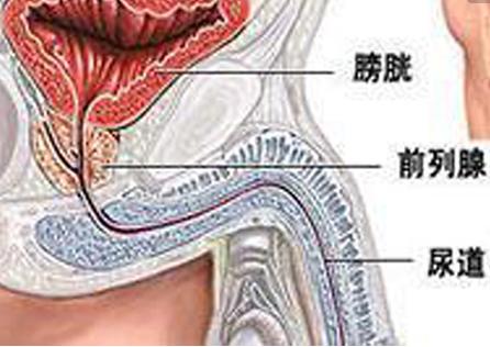 男性患有前列腺疾病应该怎么办?