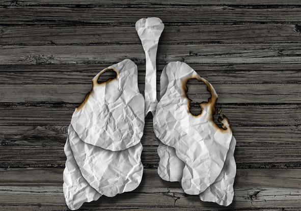 肺癌的早期癥狀都有哪些?