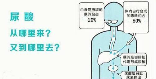 抗风竤专家:治疗痛风必须重视肝脾肾功能
